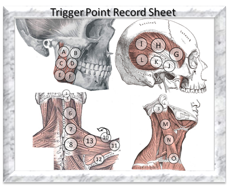 Trigger Point Record Sheet